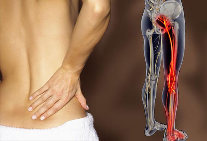 tratamento dor nervo ciatico